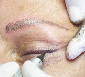 Trucco semipermanente alopecia con tatuaggio ad effetto pelo