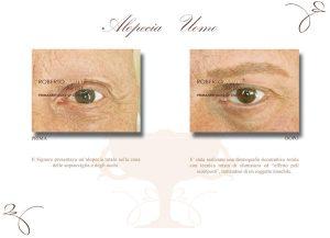 Alopecia uomo trucco semipermanente occhi