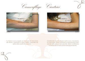 Trucco semipermanente cicatrice su braccio