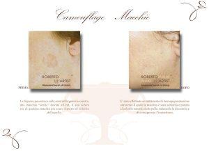 Camouflage macchie pelle con dermopigmentazione