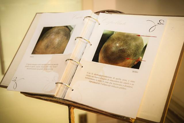 Trattamento estetico dell'alopecia