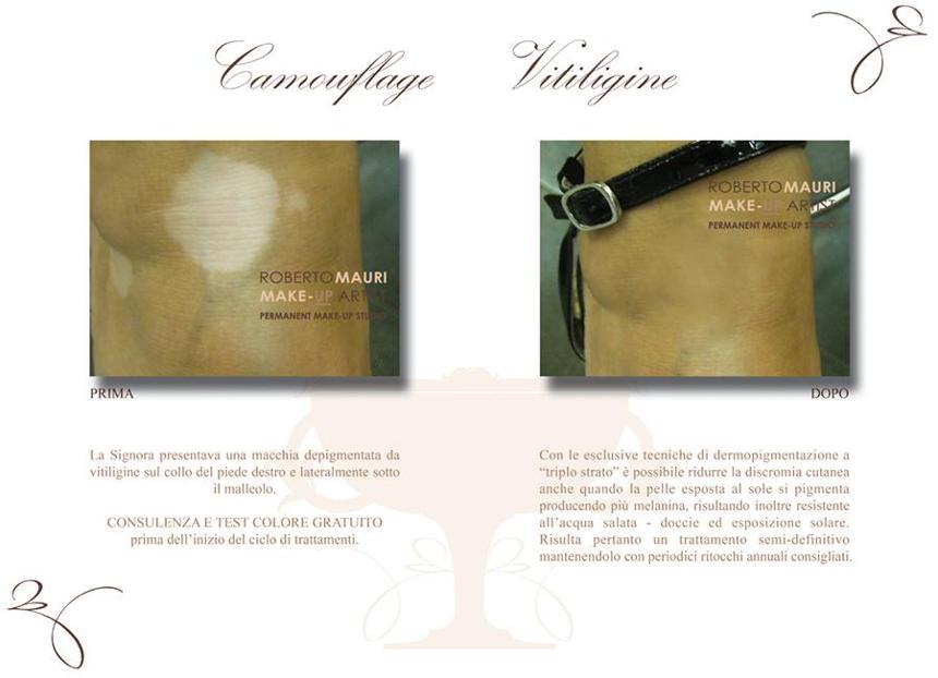 Trattamento della vitiligine con la dermopigmentazione