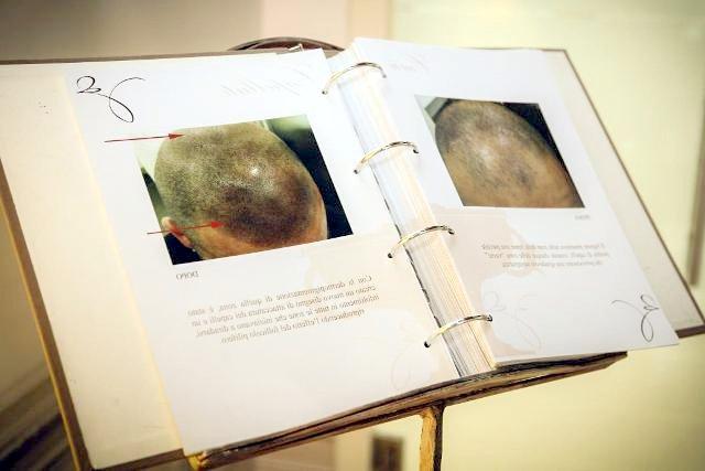 Trattamento di trucco semi-permanente finalizzato alla correzione estetica dell'alopecia su sopracciglia e cuoio capelluto, con la tecnica del tatuaggio semi-permanente ad effetto pelo.